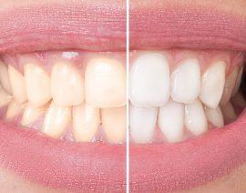 Perché i denti si ingialliscono e si macchiano?