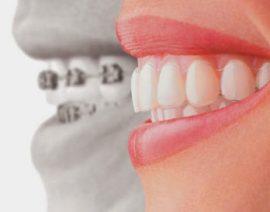 Fino a che età si può intervenire sull'allineamento dentale?
